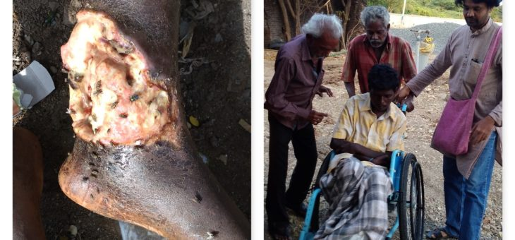 Raju is admitted at St. Joseph Ashram for intense care